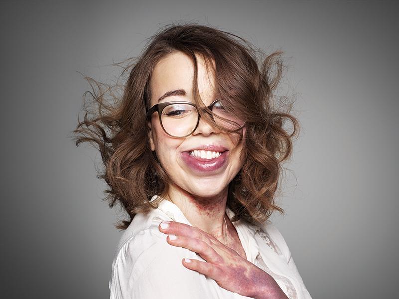 Retratos Positivos de Rankin para Changing Faces